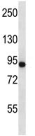 Western blot - Anti-CD97 antibody (ab116339)