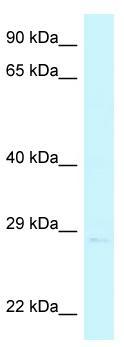 Western blot - Anti-CHMP4A antibody (ab116340)