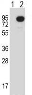 Western blot - Anti-MEKK2 antibody (ab116348)