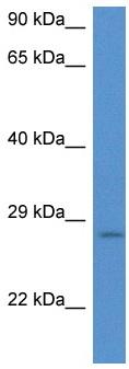 Western blot - Anti-integrin beta 4 binding protein antibody (ab116364)