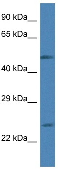 Western blot - Anti-Rab2 antibody (ab116366)