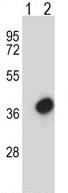 Western blot - Anti-TFIIE beta antibody (ab116381)