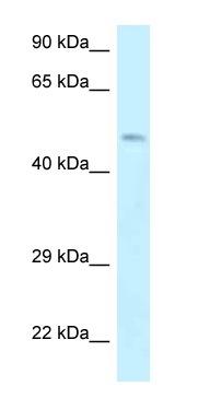 Western blot - Anti-Dematin antibody (ab116391)