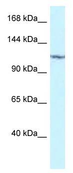 Western blot - Anti-PKN2 antibody (ab116448)