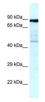 Western blot - Anti-CKAP2 antibody (ab116460)