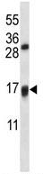 Western blot - Anti-VKORC1L1 antibody (ab116508)