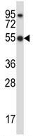 Western blot - Anti-HCLS1 antibody (ab116521)