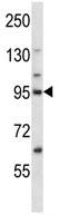 Western blot - Anti-MCAK antibody (ab116522)