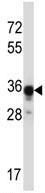 Western blot - Anti-ABHD4 antibody (ab116523)