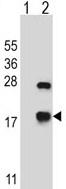Western blot - Anti-Alpha B Crystallin antibody (ab116563)