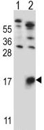 Western blot - Anti-GYPB antibody (ab116577)