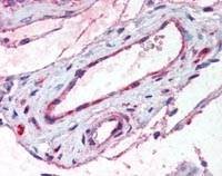 Immunohistochemistry (Formalin/PFA-fixed paraffin-embedded sections) - Anti-ADAMTS1 antibody (ab116588)