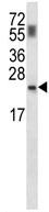 Western blot - Anti-PPCDC antibody (ab116635)