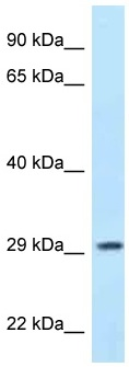 Western blot - Anti-PPP1R3B antibody (ab116642)