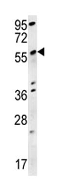 Western blot - Anti-Spata18 antibody (ab116658)