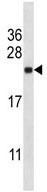 Western blot - Anti-SEC22L1 antibody (ab116676)
