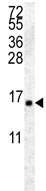 Western blot - Anti-Histone H2A antibody (ab116677)
