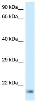 Western blot - Anti-RPL23A antibody (ab116679)