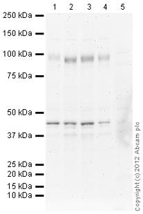 Western blot - Anti-Netrin G2 Ligand antibody (ab116697)