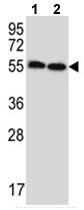 Western blot - Anti-ERV31 antibody (ab116723)