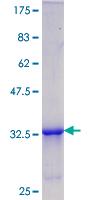 SDS-PAGE - CIRBP protein (ab116731)