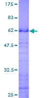 SDS-PAGE - ING2 protein (ab116739)