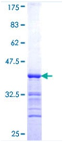 SDS-PAGE - PCYT1A protein (ab116778)