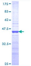 SDS-PAGE - HOXC4 protein (ab116780)