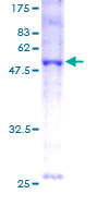 SDS-PAGE - BNIP1 protein (Human) (ab116866)