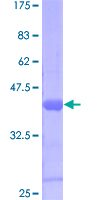 SDS-PAGE - Suppressor of Ty 4 homolog 1 protein (Human) (ab116940)