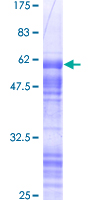 SDS-PAGE - CORD2 protein (Human) (ab117005)