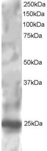 Western blot - Anti-RGS1 antibody (ab117077)