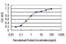 Sandwich ELISA - Anti-GilZ / TilZ antibody [3A5] (ab117085)