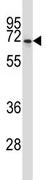 Western blot - Anti-NPFF2 Receptor antibody (ab117120)