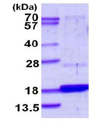 SDS-PAGE - DUSP23 protein (His tag) (ab117235)