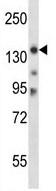 Western blot - Anti-Myosin IIIB antibody (ab117247)