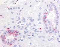 Immunohistochemistry (Formalin/PFA-fixed paraffin-embedded sections) - Anti-Prostaglandin E Receptor EP2 antibody (ab117270)