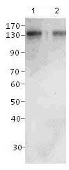 Western blot - Anti-CCK4 antibody (ab117412)