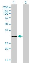 Western blot - Anti-Annexin V antibody [1F4-1A5] (ab117439)