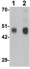 Western blot - Anti-FLJ39378 antibody (ab117441)