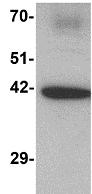 Western blot - Anti-C1orf187 antibody (ab117452)