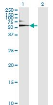 Western blot - Anti-Human Serum Albumin antibody [1G12-1B3] (ab117455)