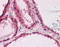 Immunohistochemistry (Formalin/PFA-fixed paraffin-embedded sections) - Anti-LIS1 antibody (ab117457)