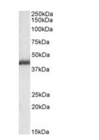 Western blot - Anti-LIS1 antibody (ab117457)