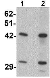 Western blot - Anti-SEC62 antibody (ab117458)