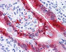 Immunohistochemistry (Formalin/PFA-fixed paraffin-embedded sections) - Anti-ABH2 antibody (ab117464)