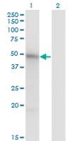 Western blot - Anti-MNK1 antibody [2H8] (ab117545)