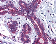 Immunohistochemistry (Formalin/PFA-fixed paraffin-embedded sections) - Anti-SLC39A7 antibody (ab117560)
