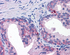 Immunohistochemistry (Formalin/PFA-fixed paraffin-embedded sections) - Anti-SLC39A3 antibody (ab117568)