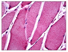 Immunohistochemistry (Formalin/PFA-fixed paraffin-embedded sections) - Anti-ATP11B antibody (ab117580)